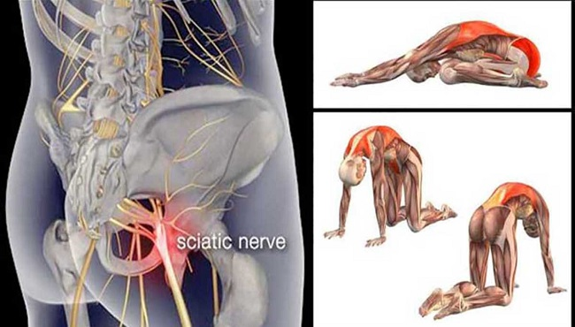 11-Piriformis-Stretches-to-Get-Rid-of-Sciatica-Hip-and-Lower-Back-Pain
