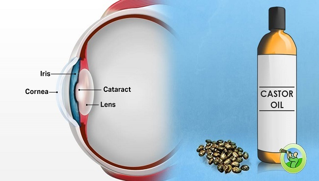 How-to-Use-Castor-Oil-to-Remove-Cataracts-and-Improve-Vision