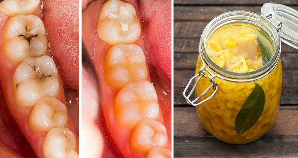 How-to-Heal-Tooth-Decay-Cavities-Naturally-With-3-Simple-and-Effective-Home-Remedies