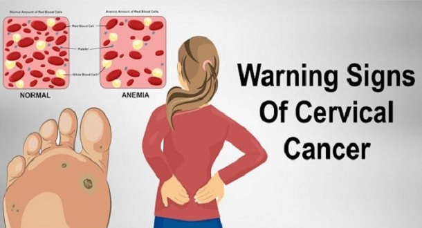 Never-Ignore-These-7-Signs-Of-Cervical-Cancer