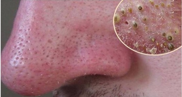 10 Simple Natural Remedies to Get Rid of Your Blackheads?