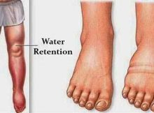 water-retention