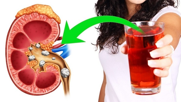 Drink This Juice Everyday to Cleanse Your Kidneys Naturally And Fast