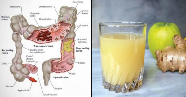 Lemon, Apple and Ginger Combination Which Flushes Pounds of Toxins